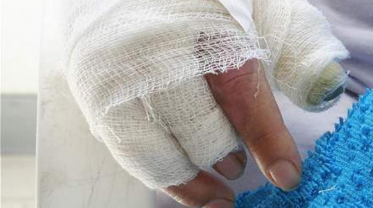 Asciende a 28 el número de personas quemadas con pólvora en Santander  | EL FRENTE