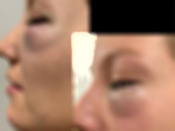 Joven fue agredida por su pareja y este la culpa por el hecho    EL FRENTE