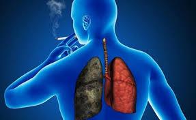 Cáncer de pulmón: tercera causa de mortalidad por cáncer | EL FRENTE
