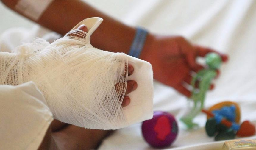 12 menores de edad quemados por pólvora en lo que va de diciembre | Nacional | Justicia | EL FRENTE