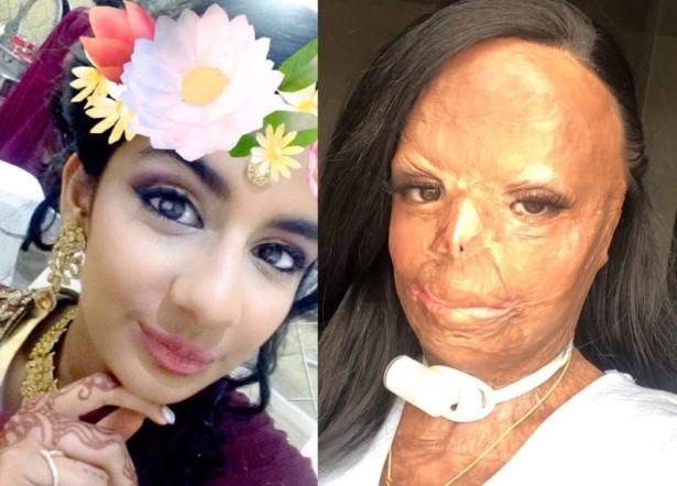 Adolescente usó champú antipiojos y terminó con el rostro desfigurado | Mundo | EL FRENTE